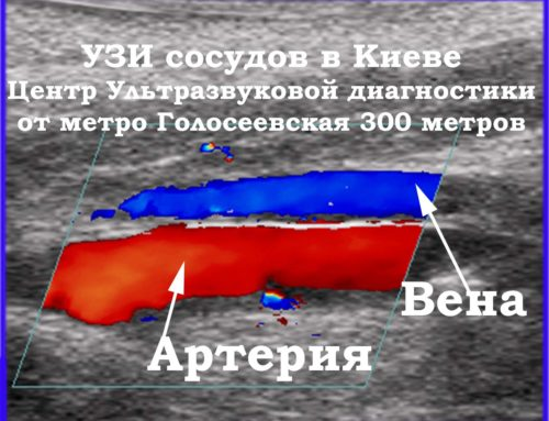 УЗИ сосудов в Киеве