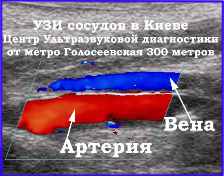 УЗИ сосудов в Голосеевском р-не г. Киева в Центре ультразвуковой диагностики