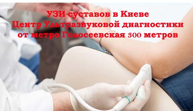 УЗИ суставов в Голосеевском р-не г. Киева в Центре ультразвуковой диагностики